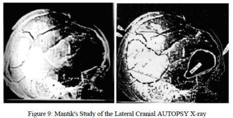 Dr. Mantik's Autopsy X-Ray
